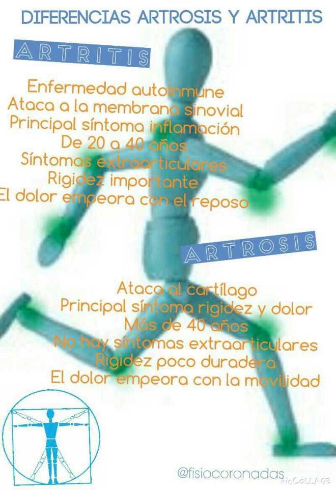 fisioterapia, fisioterapeuta, coronadas, artrosis, artritis