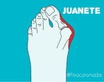 juanete,fisioterapia coronadas,hallux valgus, pie, dedo pulgar, tratamiento, mejorar dolor
